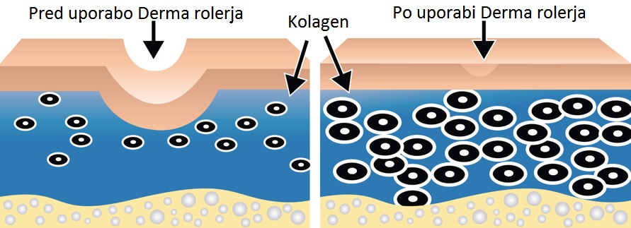 Derma roler